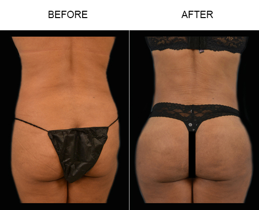 Before And After Brazilian Butt Augmentation Treatment In FL