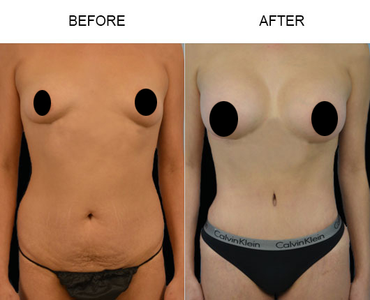 Mommy Makeover Surgery Before & After