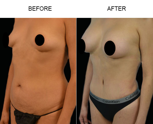 Before And After Mommy Makeover Surgery