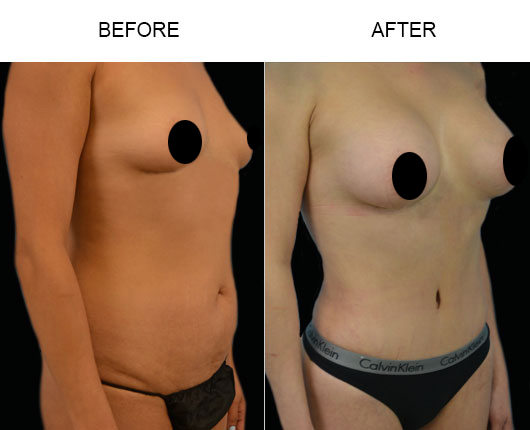 Before & After Mommy Makeover Surgery