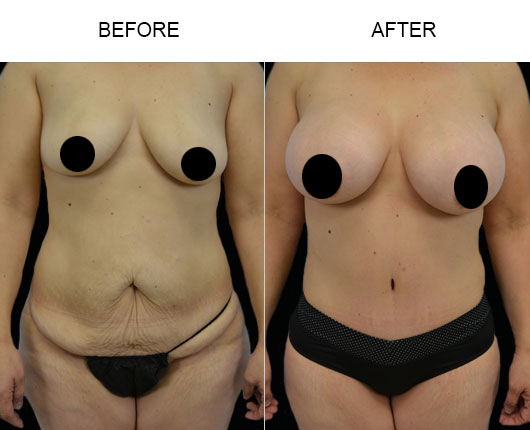 Mommy Makeover Surgery Results