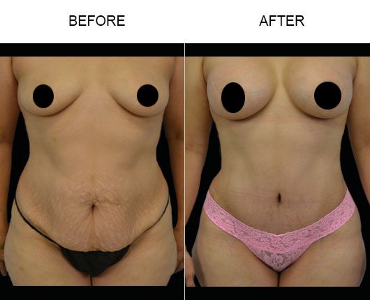 Before & After Mommy Makeover Treatment