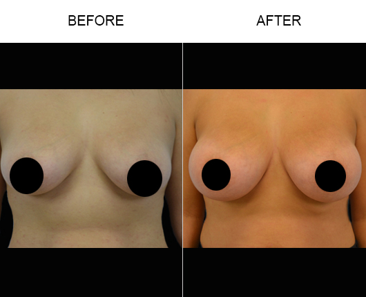 Breast Augmentation Treatment Before And After