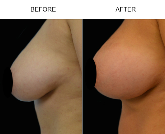 Before And After Breast Augmentation Treatment