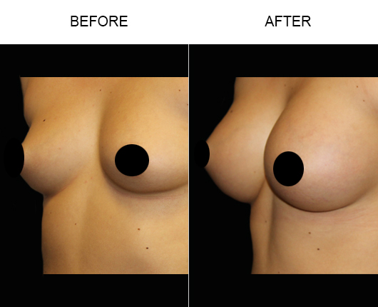 Breast Augmentation Treatment Results