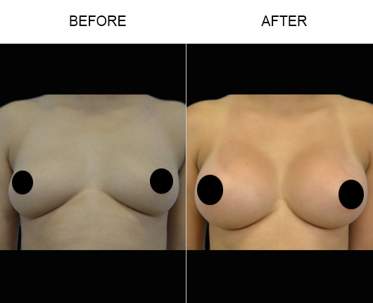 Florida Breast Augmentation Before & After