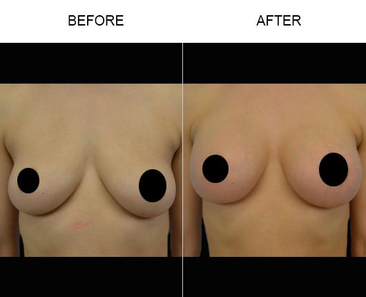 Florida Breast Augmentation Results