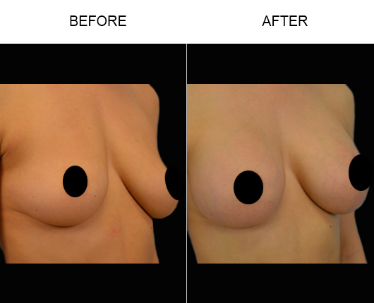 Florida Breast Augmentation Surgery Before And After