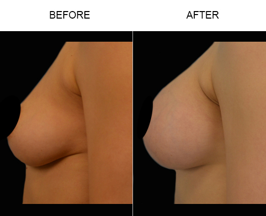 Florida Breast Augmentation Surgery Before & After