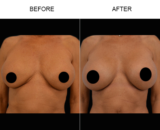 Before And After Breast Augmentation Surgery In Florida