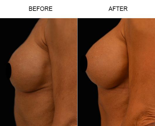 Florida Breast Augmentation Surgery Results