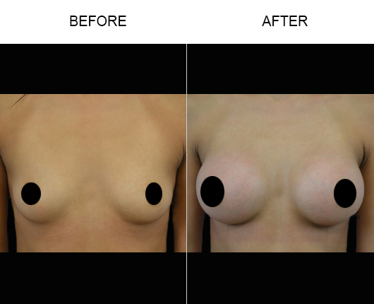 Florida Breast Augmentation Treatment Before And After
