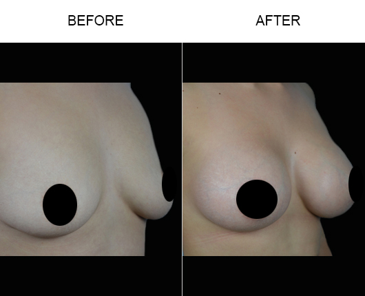 Florida Breast Augmentation Treatment Results
