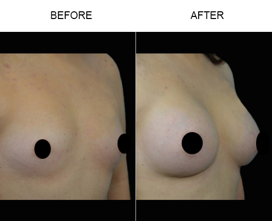 Before And After Breast Implant