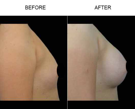 Before & After Breast Implant