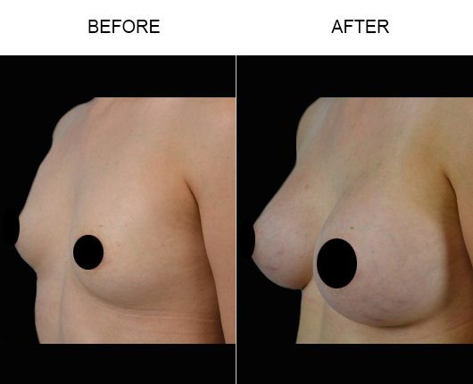 Before & After Breast Implant Surgery