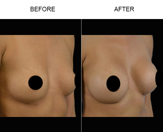 Breast Implant Treatment Before & After
