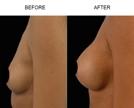 Before And After Breast Implant Treatment