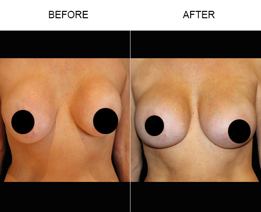Before & After Breast Implant Treatment