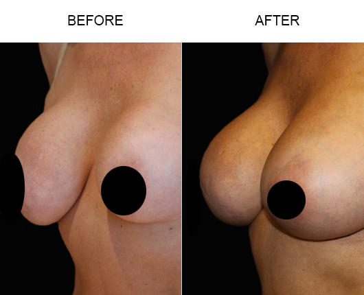 Breast Implant Treatment Results