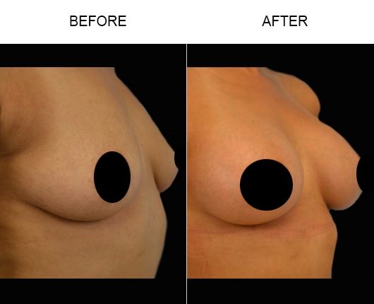 Breast Implants Before & After