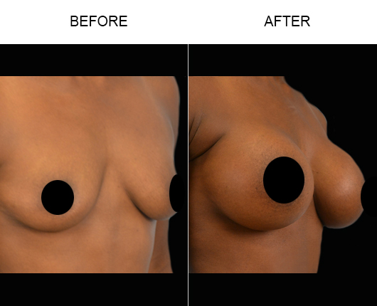 Before & After Breast Implants