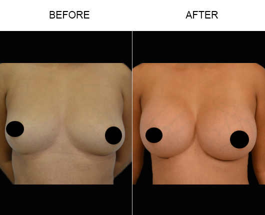 Breast Implants Results