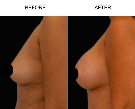Breast Implants Surgery Before And After