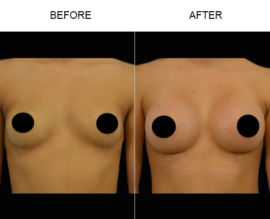 Before & After Breast Implants Surgery