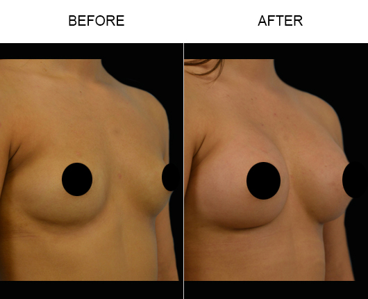 Breast Implants Surgery Results