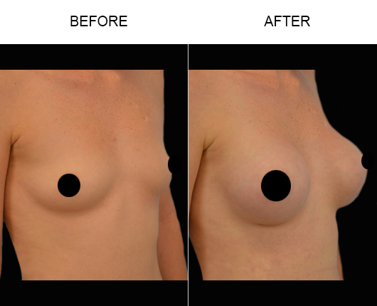 Breast Implants Treatment Before And After