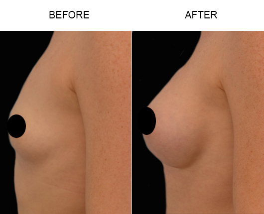 Breast Implants Treatment Before & After