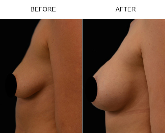 Before And After Breast Implants Treatment