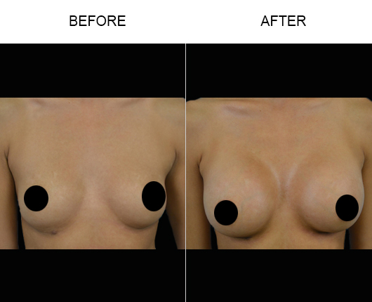 Breast Implants Treatment Results