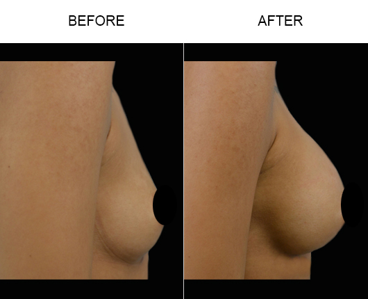 Florida Breast Implants Before And After