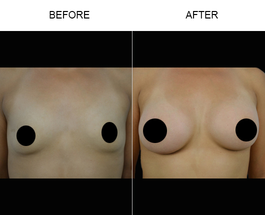 Florida Breast Implants Before & After
