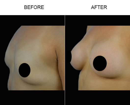 Before And After Breast Implants In Florida