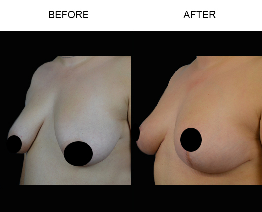 Breast Lift Treatment Before & After