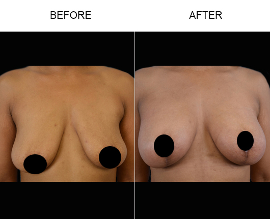 Before & After Breast Lift Treatment