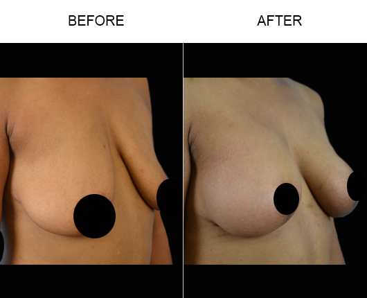 Breast Lift Treatment Results