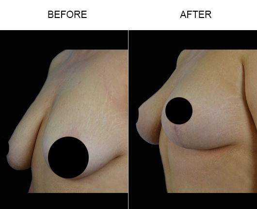 Mastopexy Before & After