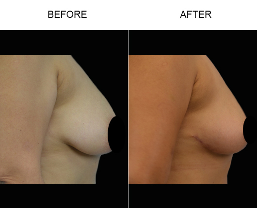 Before & After Mastopexy