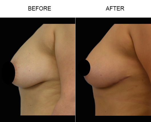 Mastopexy Surgery Before And After