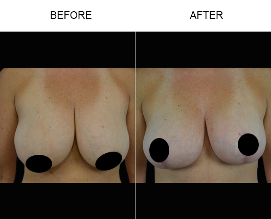 Mastopexy Surgery Before & After