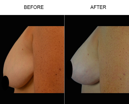 Mastopexy Surgery Results