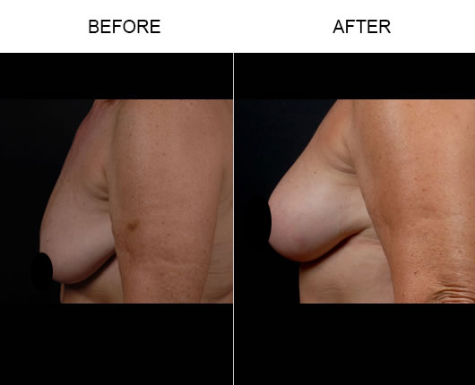 Mastopexy Treatment Before & After