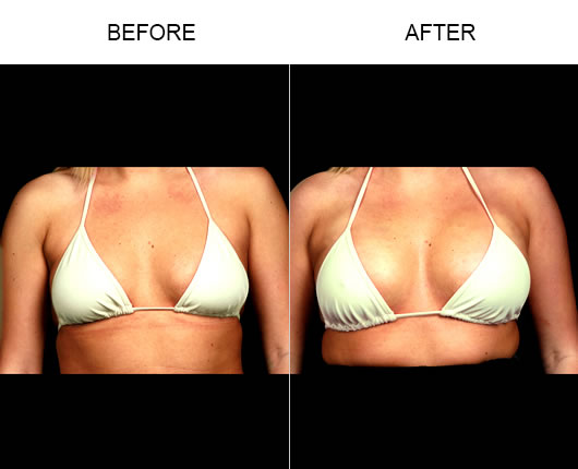 Naturalfill Breast Before & After