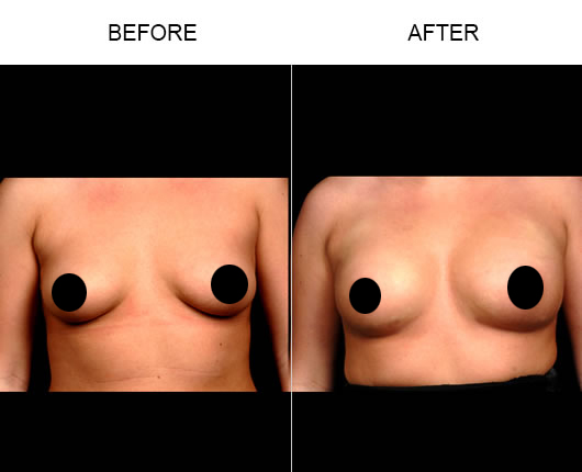 Naturalfill Breast Results