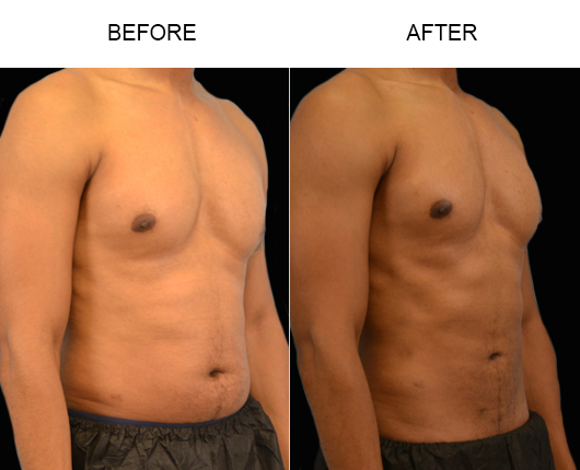 Male Liposuction Results