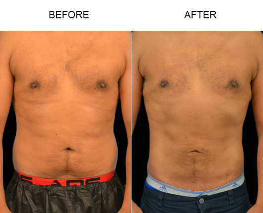 Before And After Male Lipo